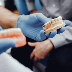 Master in Prosthodontics and new technologies 2019/20